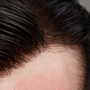 Hair Restore Hair line essex